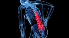 Osteoporoza kręgosłupa. Objawy, leczenie